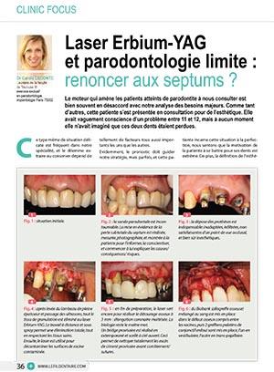 laser-erbium-yag-et-parodontologie-limite-renoncer-aux-septums-1