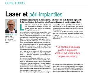 laser-et-peri-implantites-1