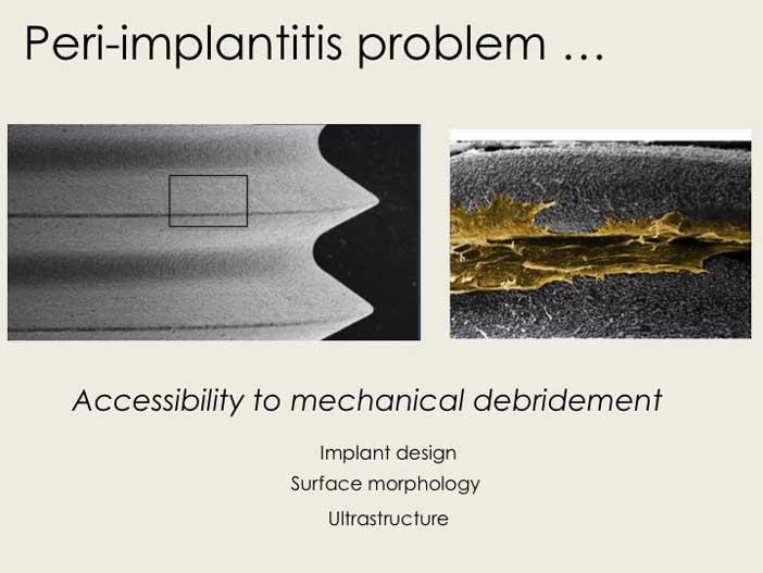 L'onde de choc produite par le LASER permet un nettoyage sous les spires des implants dans des espaces très restreints, inaccessibles à l'instrumentation conventionnelle