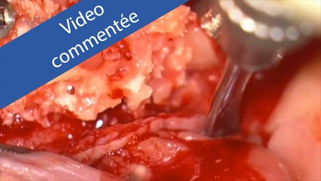 Bandeau video commentée